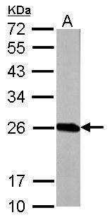 GSTP1 Antibody (PA5-29558) in Western Blot