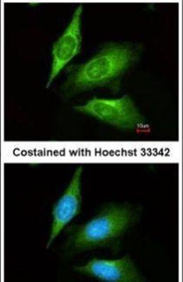 TMED4 Antibody (PA5-29564)