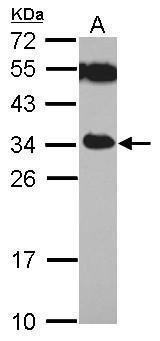 TICAM2 Antibody (PA5-29576) in Western Blot
