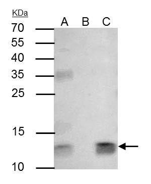 beta-2 Microglobulin Antibody (PA5-29580) in Immunoprecipitation