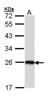 C1q Antibody (PA5-29586) in Western Blot