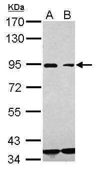 CD36 Antibody (PA5-29589) in Western Blot