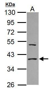 eIF2a Antibody (PA5-29593) in Western Blot