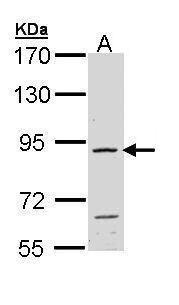 FGFR4 Antibody (PA5-29596)