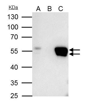 FLI1 Antibody (PA5-29597) in Immunoprecipitation