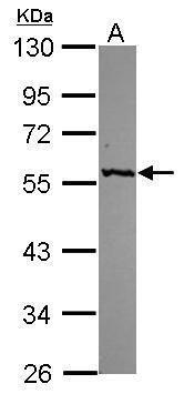 GPT Antibody (PA5-29600) in Western Blot