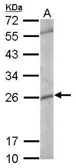 GSTP1 Antibody (PA5-29601) in Western Blot