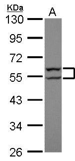 Cytokeratin 8 Antibody (PA5-29607) in Western Blot