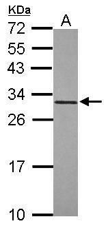 MyD88 Antibody (PA5-29611) in Western Blot