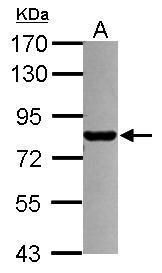 PML Antibody (PA5-29614) in Western Blot