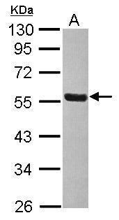 THRA Antibody (PA5-29618) in Western Blot
