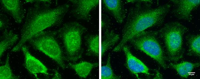 TLR4 / CD284 Antibody (PA5-29620)