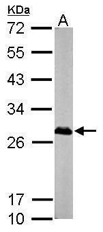 XPA Antibody (PA5-29623)