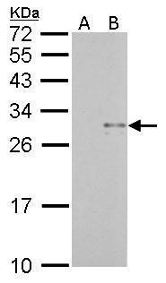 TRAIL Antibody (PA5-29625) in Western Blot
