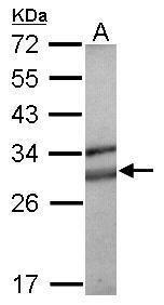 SOCS3 Antibody (PA5-29628)
