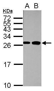 MYL1 Antibody (PA5-29635) in Western Blot