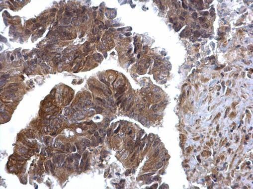 ERK2 Antibody (PA5-29636) in Immunohistochemistry (Paraffin)