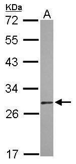 DIABLO Antibody (PA5-29639) in Western Blot