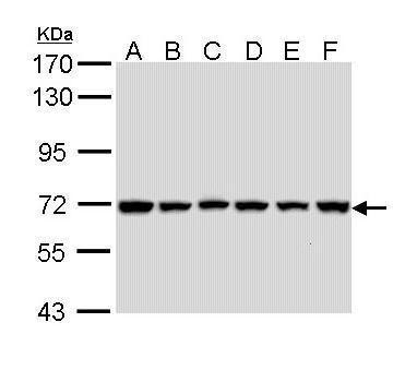 cIAP2 Antibody (PA5-29643) in Western Blot