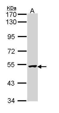 XIAP Antibody (PA5-29644) in Western Blot