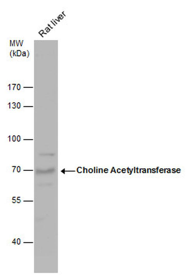 ChAT Antibody (PA5-29653) in Western Blot