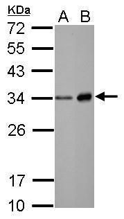 Neutrophil elastase Antibody (PA5-29659)