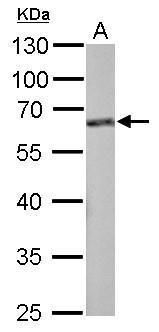 FMRP Antibody (PA5-29661) in Western Blot