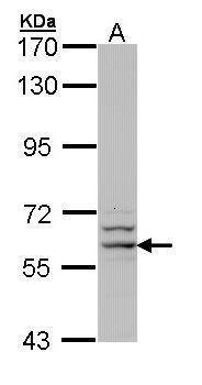 G6PD Antibody (PA5-29662) in Western Blot