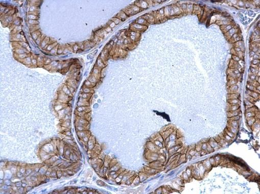 Cytokeratin 5 Antibody (PA5-29670) in Immunohistochemistry (Paraffin)