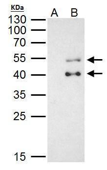 PBX1 Antibody (PA5-29674) in Immunoprecipitation