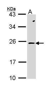 RAC2 Antibody (PA5-29681) in Western Blot