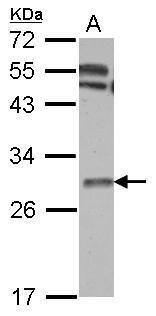 TK1 Antibody (PA5-29686) in Western Blot