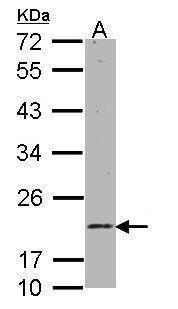 RAB11 Antibody (PA5-29692)