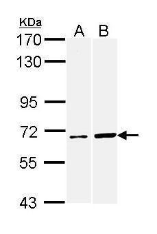 AIF Antibody (PA5-29693) in Western Blot