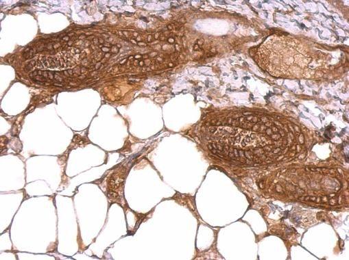 WWOX Antibody (PA5-29701) in Immunohistochemistry (Paraffin)
