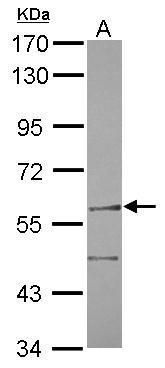 FANCC Antibody (PA5-29704) in Western Blot