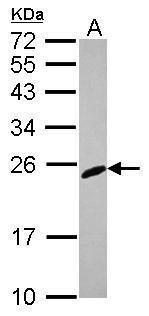RGS2 Antibody (PA5-29708)