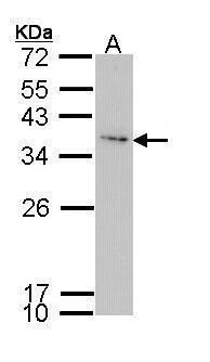 IGFBP3 Antibody (PA5-29711) in Western Blot