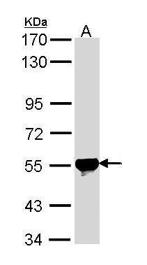 ALDH2 Antibody (PA5-29717) in Western Blot