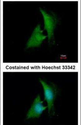 AKR1B1 Antibody (PA5-29718)