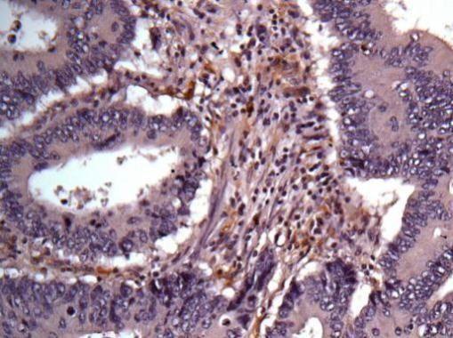 AKR1B1 Antibody (PA5-29718) in Immunohistochemistry (Paraffin)