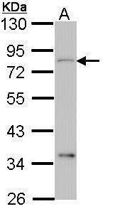 CEACAM1 Antibody (PA5-29720) in Western Blot