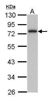 Calpain 3 Antibody (PA5-29721) in Western Blot
