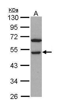 RCC1 Antibody (PA5-29722) in Western Blot