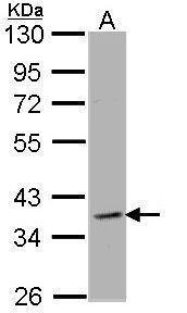 CLCN2 Antibody (PA5-29723) in Western Blot