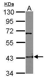 CTH Antibody (PA5-29725) in Western Blot