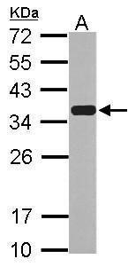 Emerin Antibody (PA5-29731) in Western Blot