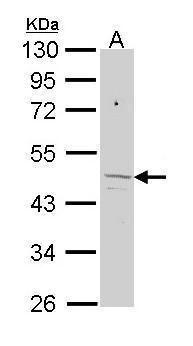 FECH Antibody (PA5-29733) in Western Blot