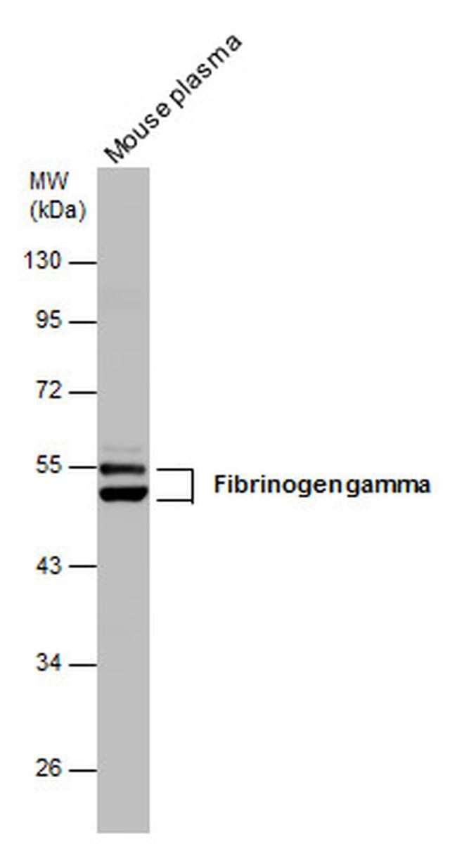 Fibrinogen gamma Antibody (PA5-29734) in Western Blot