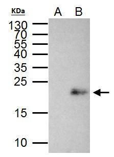MAX Antibody (PA5-29745) in Immunoprecipitation